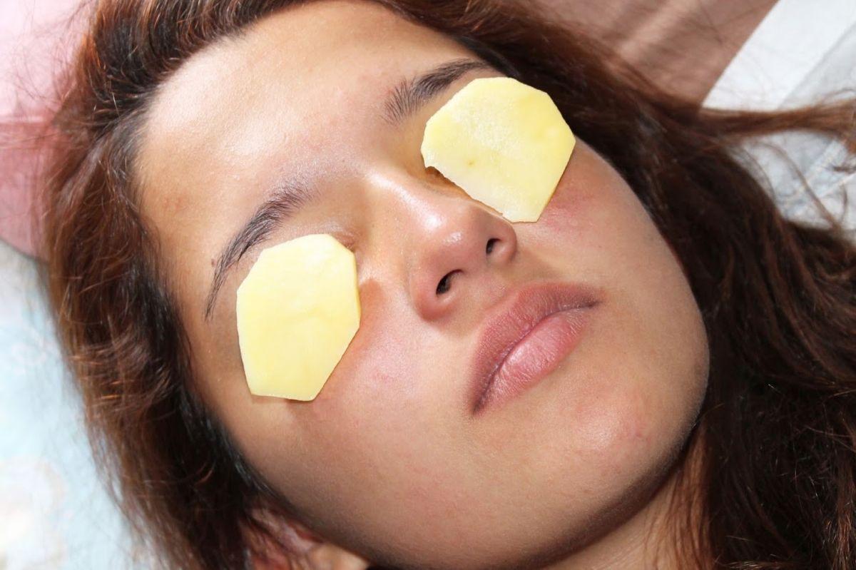 potato-slices-on-eyes